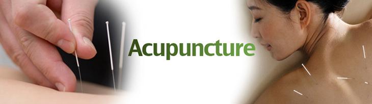 Naples Acupuncture Services
